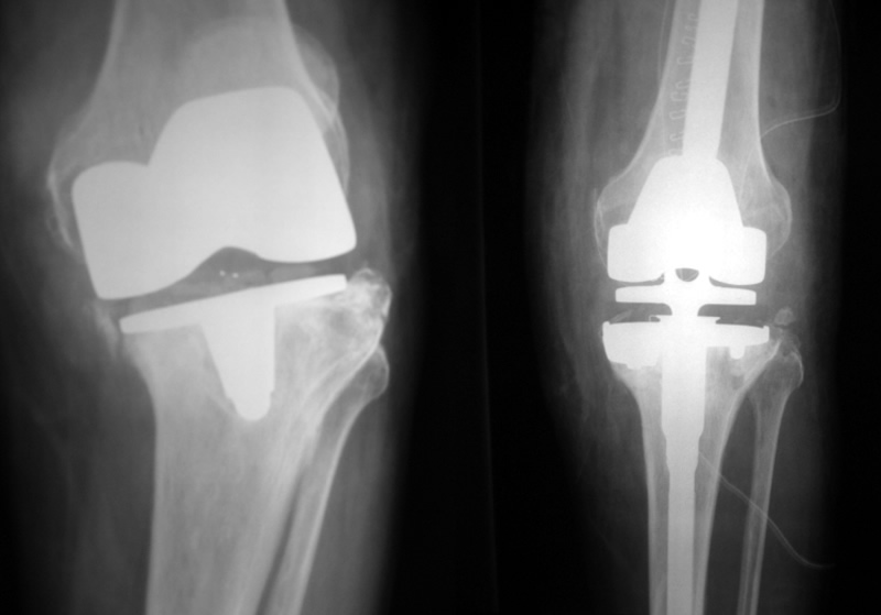 Revision Of Total Knee Replacement Orthopaedic Tony Maury